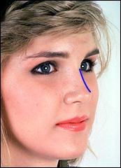 Горбинка на носу сонник